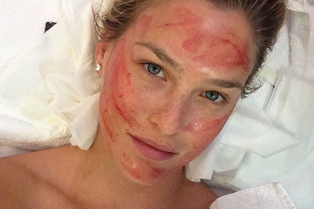 La modelo Bar Rafaeli es una de las celebridades que aman en vampire facial.
